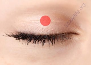Eyelid (Oops! image not found)