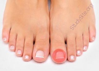 Toenail (Oops! image not found)